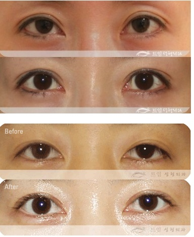 how to fix a lazy eyelid without surgery