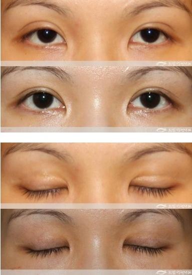 Bad Double Eyelid Surgery Double eyelid surgeryBad Double Eyelid Surgery