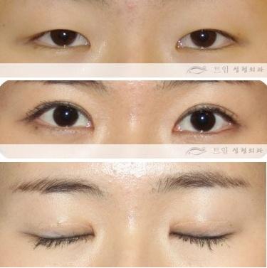 Teuim Aesthetic Plastic Surgery Clinic Bad Double Eyelid Surgery